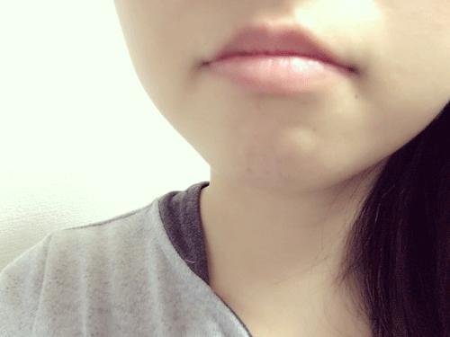 リップビジューを使用前の女性の唇