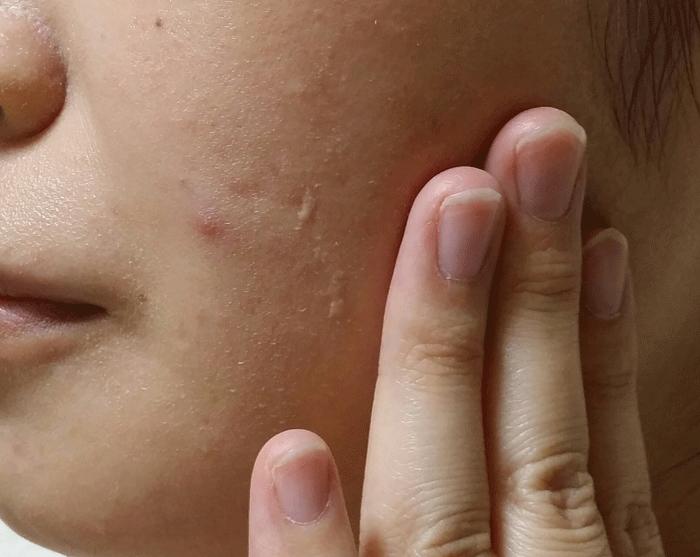 大人ニキビに悩んでいる女性が顔に化粧水をつけている写真